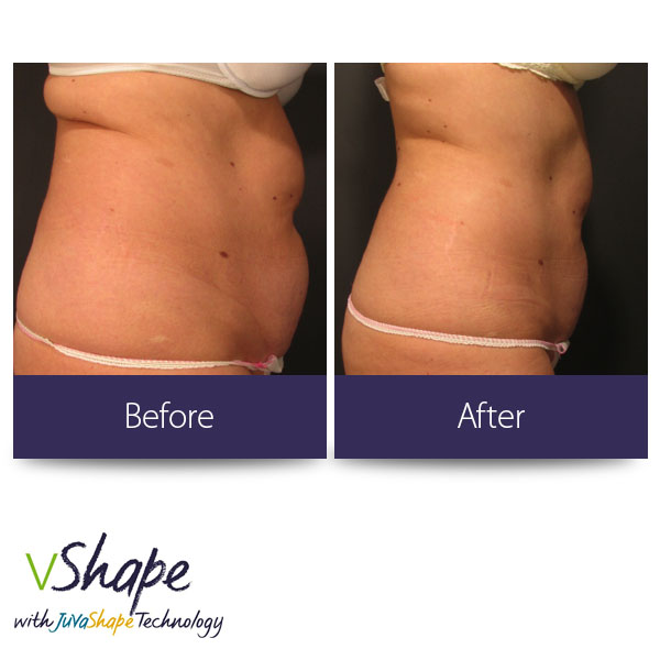 vShape Before and After